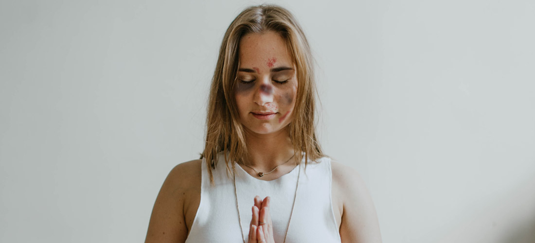 Woman with bruised face